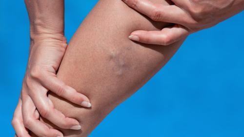 înfășurarea luturilor din varicoză varicoză pe măsură ce puteți vindeca venele