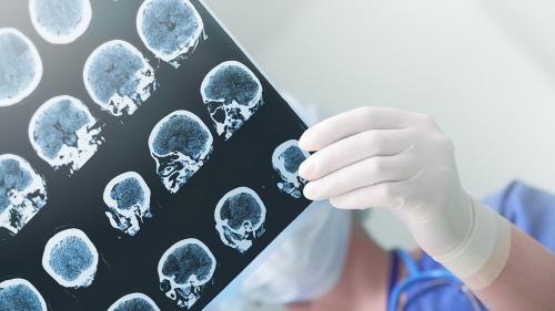 Atrofia cerebrală - tot ce trebuie să știi despre ea