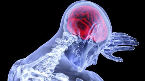 Accidentele vasculare cerebrale trecătoare anunţă un AVC masiv în creier