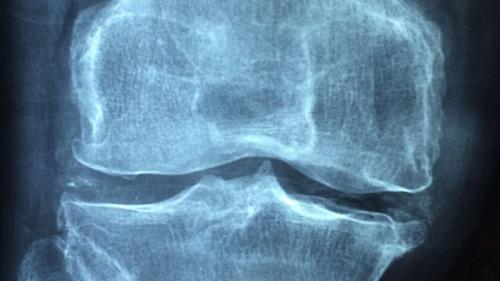 Osteoporoza e o pierdere de substanţă osoasă cu fragilizarea oaselor