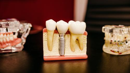 6 lucruri pe care nu le știai despre implanturile dentare