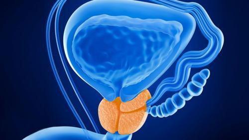 Leziunile canceroase în prostată apar la vârste tot mai tinere