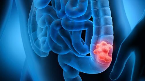 Cancerul de colon poate fi confundat cu sindromul intestinului iritabil