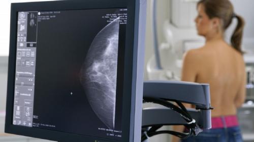 Gesturi care salvează viața în cancerul de sân