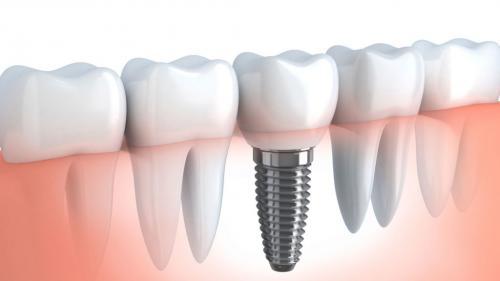 Pregătirea pentru montarea unui implant dentar