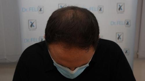 Chelie timpurie? Transplantul de păr în clinica Dr. Felix Hair Implant poate fi soluție