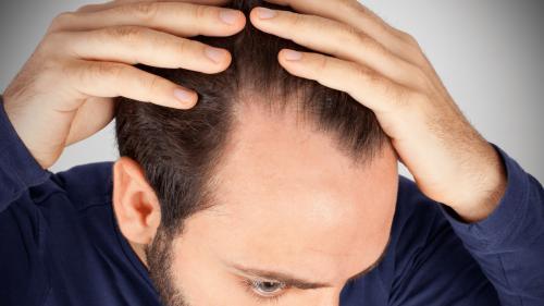 Căderea părului din cauza stresului, afecțiunea secolului 21